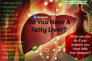 Do-you-have-a-fatty-liver